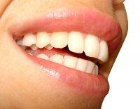 śnieżnobiały uśmiech, zęby