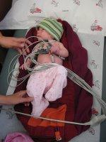 Ekg niemowlęcia