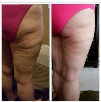 leczenie cellulitu